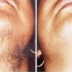 Hairs Removal by Laser Treatment